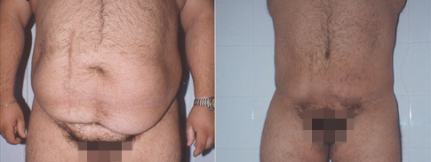 Reconstruction after massive weight loss